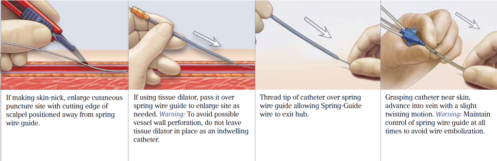 the importance of picc tip placement