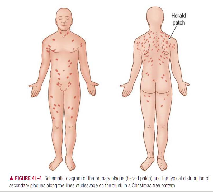 Dermatology Skin Mcqs Critical Care Medicine