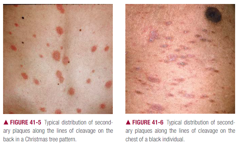 Guttate psoriasis with droplike, discrete papules and small plaques with scales 2