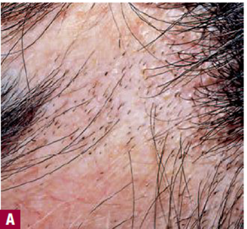 Dermatology Skin Mcqs 171 Review Of Critical Care Medicine